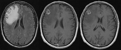 before-after-neurosurgery-01