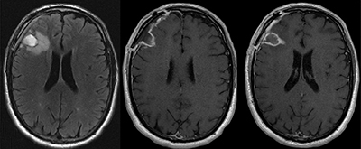 before-after-neurosurgery-02