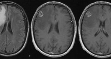 Cerebral metastasis