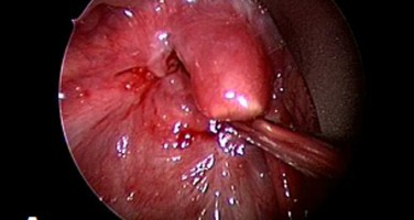 Epiglottidectomy resulting from caustic ingestion